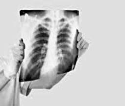 Пошкодження легень - важкий перебіг Covid-19