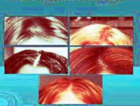 Від випадіння волосся препарат фінастерид має потужні побічні ефекти